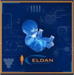 Baby-eldan